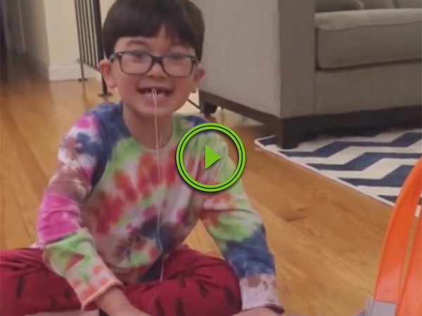 Little daredevil pulls tooth with hot wheels car