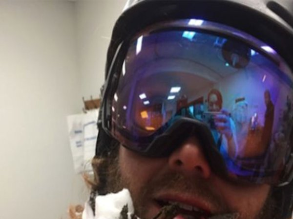 Ski instructor impaled in face by tree (4 Photos)