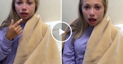 Girl thinks she has no bottom lip after wisdom teeth surgery (Video)
