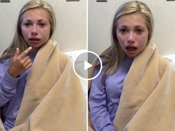 Girl thinks she has no bottom lip after wisdom teeth surgery (Video)