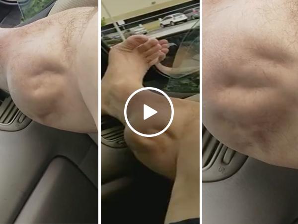 Man has incredible pulsating cramp in his calf (Video)