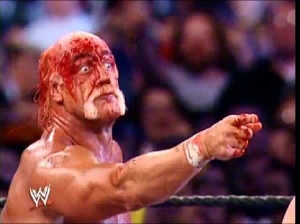 wrestlemania wwe 34 matches blood violent john cena undertaker kurt angle brock lesnar 1292358 NSFW sex injuries that ended up with a trip to the ER (9 Photos)