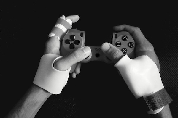 gnarly video gaming injuries will make you put that controller down x photos 14 Gnarly video gaming injuries will make you put that controller down (14 Photos)
